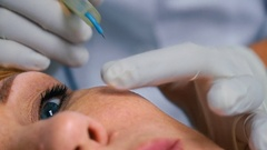 Burning warts and moles on the face in the cosmetology center Stock Footage