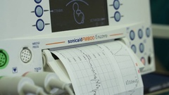 Monitor maternal and fetal Stock Footage
