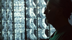 Serious male therapist looking at MRI scans, rubbing chin, incurable disease Stock Footage