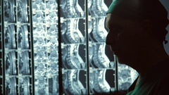 Attentive doctor focused on patients spine MRI scan, diagnostics expert at work Stock Footage
