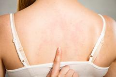 Woman scratching her itchy back with allergy rash Stock Photos