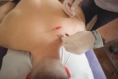 Physiotherapist performing electro dry needling on back of a patient Kuvituskuvat