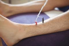 Patient getting electro dry needling on leg Kuvituskuvat