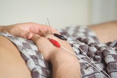 Patient getting electro dry needling on hand Kuvituskuvat