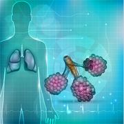 Alveoli a part of the respiratory system. Lung silhouette at the background. Stock Illustration