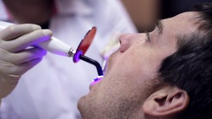 Dentist working with dental polymerization lamp in oral cavity. Stock Footage