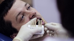 Close-up of young man in dentist chair, check and select the color of the teeth. Stock Footage