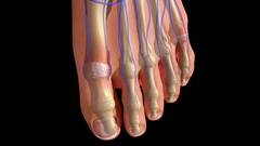 Foot Phalanges Stock Footage