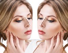 Female nose before and after cosmetic surgery Kuvituskuvat