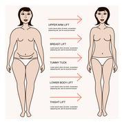 Body correction concept Stock Illustration