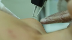 Cosmetology laser cauterizes the blood vessels Stock Footage