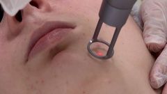 Cosmetic procedure laser cleaning of patient Stock Footage