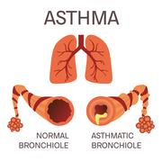Normal and asthmatic bronchioles Piirros