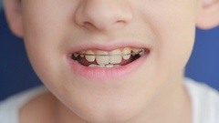 Smiling child with braces on teeth Stock Footage