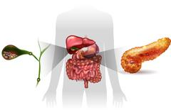 Gallstones in the Gallbladder and acute pancreatitis Stock Illustration