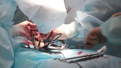 Closeup of surgeon's hand wearing rubber gloves which makes the operation Stock Footage