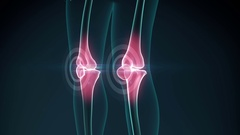 Knee pain animation. Healthy joint, unhealthy painful joint with osteoarthritis. Stock Footage