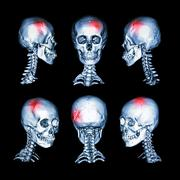 Stroke , skull fracture , neurological condition . Stock Illustration