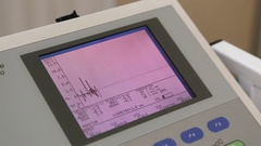 Medical device monitor for urological examination Stock Footage