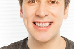 Happy face of young man with dental braces Stock Photos