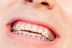 Man's smile with orthodontic braces Stock Photos