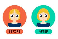 Balding woman before anf after treatment Stock Illustration