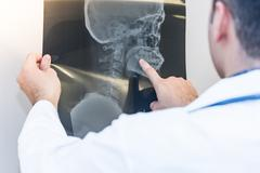Close up of doctor looking examining an x-ray film . Medicine and health-care Kuvituskuvat