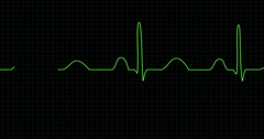 Electrocardiogram screen Stock Footage