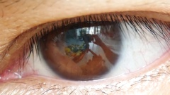 Human eye iris contracting. Extreme close up. Stock Footage