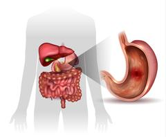 Stomach ulcer, interanal organs anatomy colorful drawing Stock Illustration