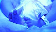 Newborn with Jaundice - close up of feet under UV light Stock Footage