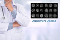 Alzheimers Disease concept , Brain degenerative diseases Parkinson Stock Photos