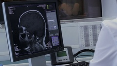 Doctor works at the computer with tomography brain Stock Footage