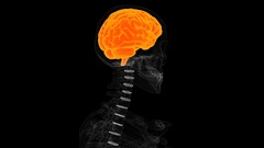Human brain medical scan results on screen, MRI, patient's disease diagnostics Stock Footage