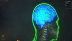 Human brain model spinning on screen, computer program showing scan results Stock Footage