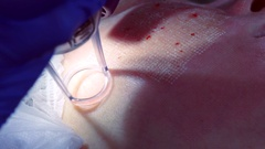 Close-up of laser cosmetology . Resurfacing of the skin Stock Footage