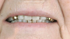 Adult woman with false teeth smiling at camera Stock Footage