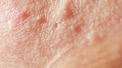 Spherical cystic acne on the skin. Close-up. The concept of dermatology Stock Footage