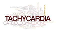 Tachydardia animated word cloud, text animation. Kinetic typography. Stock Footage