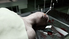 Smoking kills. dead male body in morgue on steel table. Corpse. Autopsy concept. Stock Footage