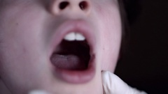 4K Close-up Child Face Examined By Doctor in Throat  Stock Footage