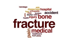 Fracture animated word cloud, text design animation. Stock Footage