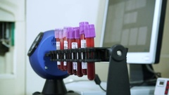 Blood samples in glass retorts are prepared for analysis on medical equipment HD Stock Footage