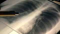Doctor explaining x-ray image of a chest to a patient. 4K close-up video Stock Footage