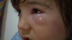 Close up swelling under child eye Stock Footage