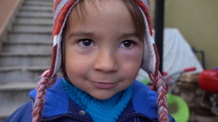 Face of a child with a swollen eye Stock Footage