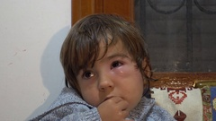 Poor child with bump under his eye Stock Footage