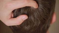 Dandruff hair on men, closeup, man scratches his head. Stock Footage